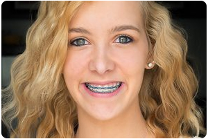 4-reasons-seeing-your-dentist-during-orthodontic-treatment-is-important-543-300x300