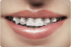 Benefit From Clear Braces By Scottsdale A Z Orthodontist