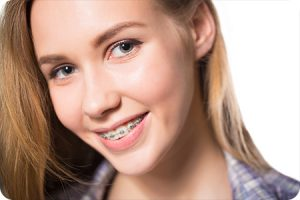 el mirage az orthodontist do braces cause white spots