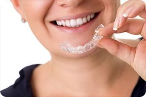peoria az orthodontist invisalign faq