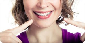 scottsdale az orthodontist braces myths