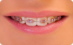 paradise valley az orthodontist healthy teeth braces