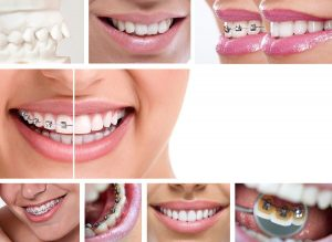 el mirage orthodontist