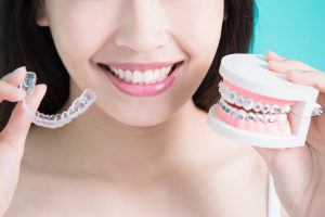 invisalign in scottsdale