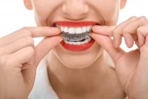 paradise valley az orthodontist