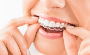 scottsdale-orthodontist-invisalign-for-children